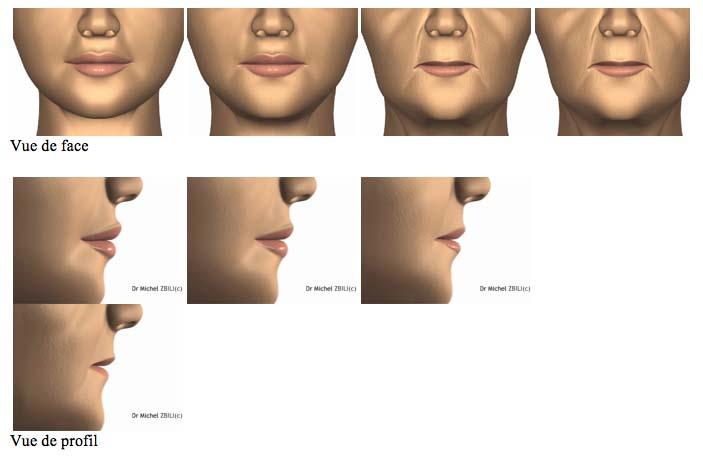 remodelage des lèvres